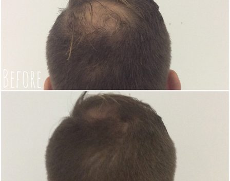 Scalp Before and After 4 copy