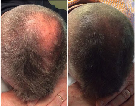 Scalp Before and After 5 copy